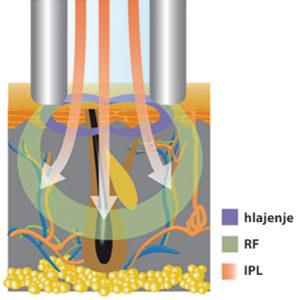 delovanje IPL + RF