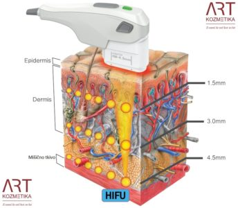 prikaz delovanja HIFU-ja